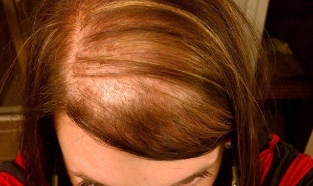 Alopecia difusa Diffuse alopecia trasplante capilar