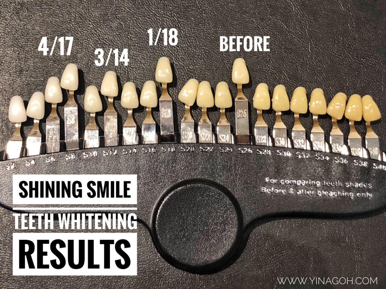 Shining Smile Singapore teeth whitening results