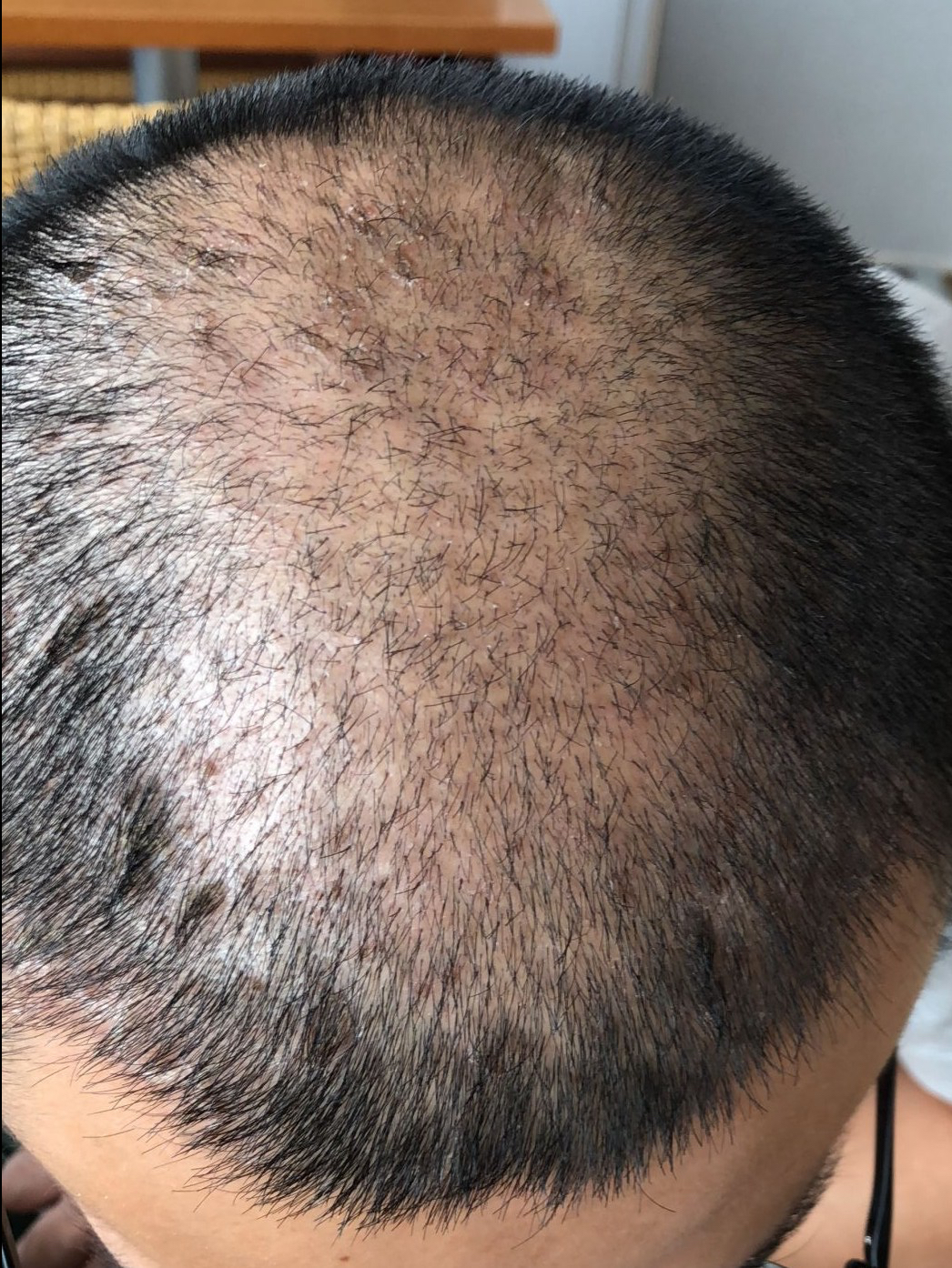 Healing/scabbing after FUE hair transplant surgery