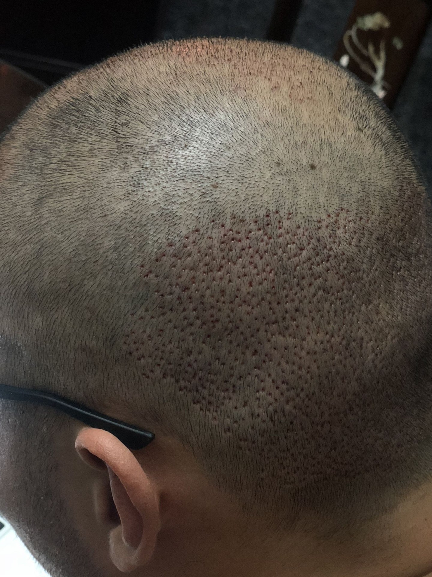 After FUE hair transplant surgery