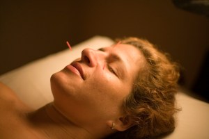 A client relaxes with three needles in her face.