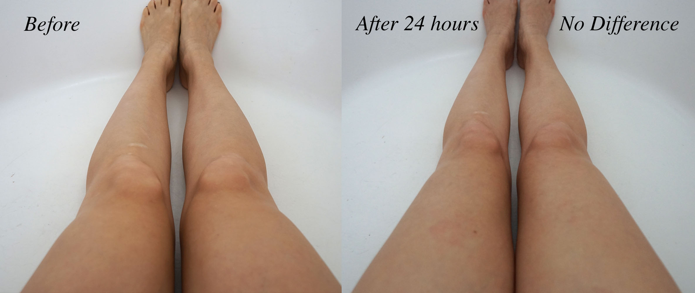 Before and After St Tropez Legs