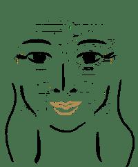 kraehenfueße, lachfalte abschwächen mit botox, youthconnection hannover