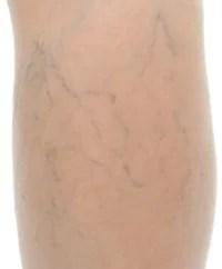 ipl gefäßzeichnungen vaskuläre läsion