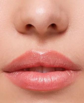 Lippenaufspritzen, Lippenbehandlung