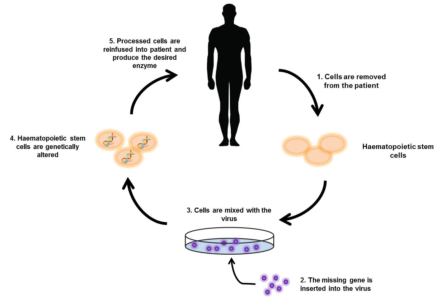 Searching For A Cure Hunter Syndrome And Gene Therapy