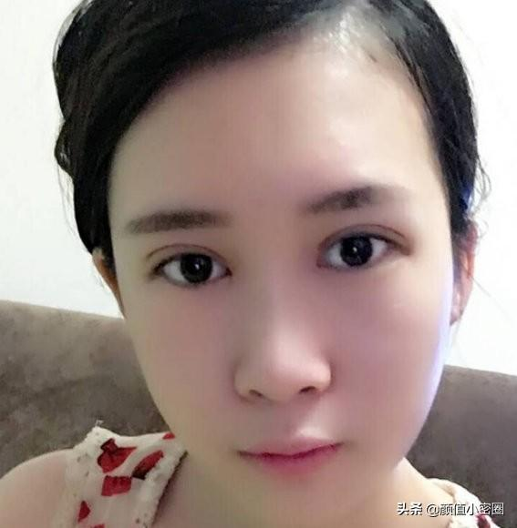 Coordinate Guiyang face-lift pin submission: Recently, the face looks better. The effect of the thin face pin is really good. I feel that the face is thinner, the masseter muscles are smaller, and the lines of the face are firmer. I feel very satisfied! ! Face-lift pin