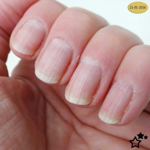 Sally-Hansen---Miracle---nailgrowth---3