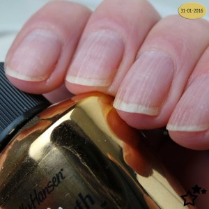 Sally-Hansen---Miracle---nailgrowth---5