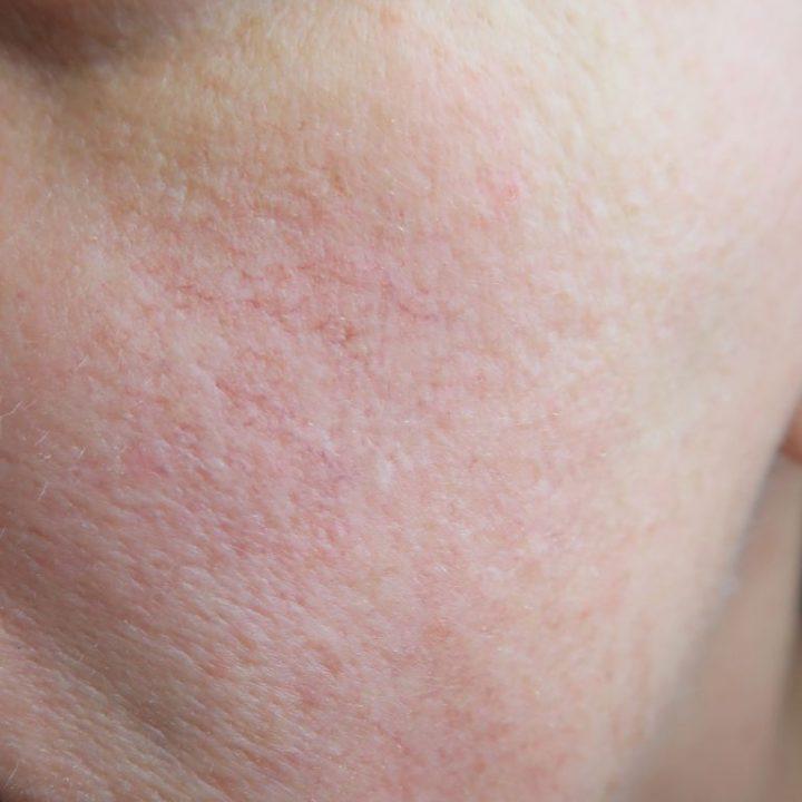 actiion-shoplog-maskers-skincare-sheetmask-yustsome-verzorging-huid-blogger-8