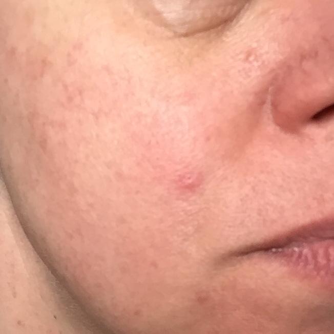 Utsukusy, Japans, vr, Cream, restore, huid, verbetering, chemo, bestraling, kanker, hulp, beauty, blog, yustsome