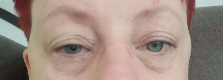 Allergie, hooikoorts, ontstoken, ogen