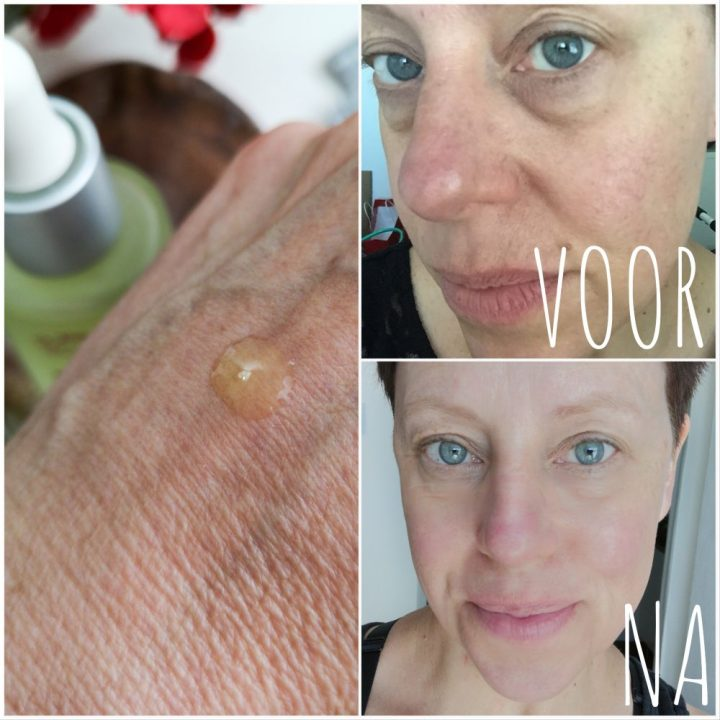 Hannah, huid, coach, retinol, vitamine A, absolute, serum, verzorging, beste, product, blog, yustsome, review