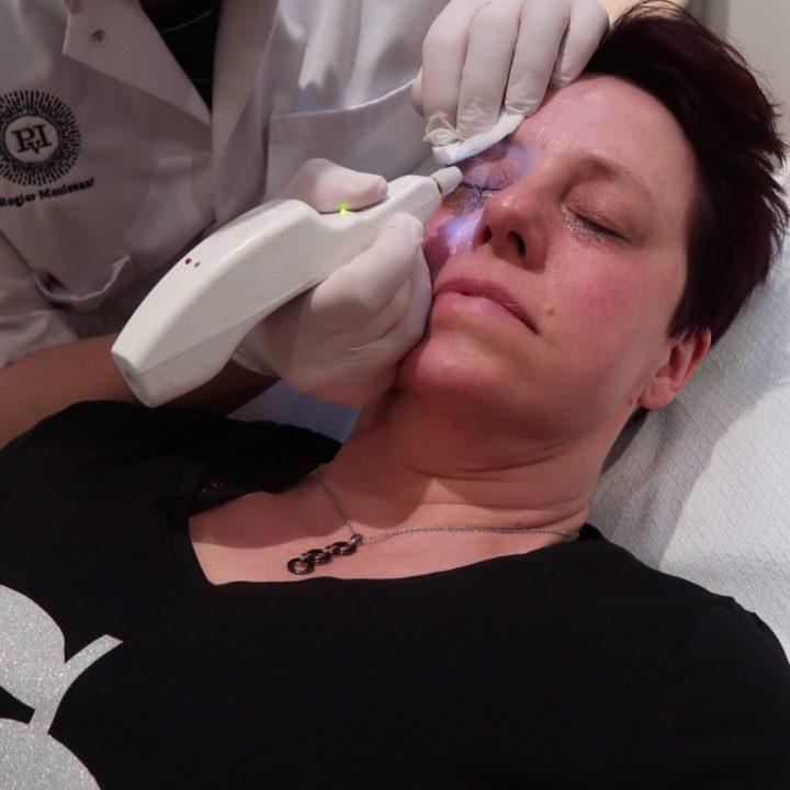 Plexr, soft surgery, laser, ooglid, correctie, praktijk voor Injectables, Meulenaar, dokter, Veldhoven,