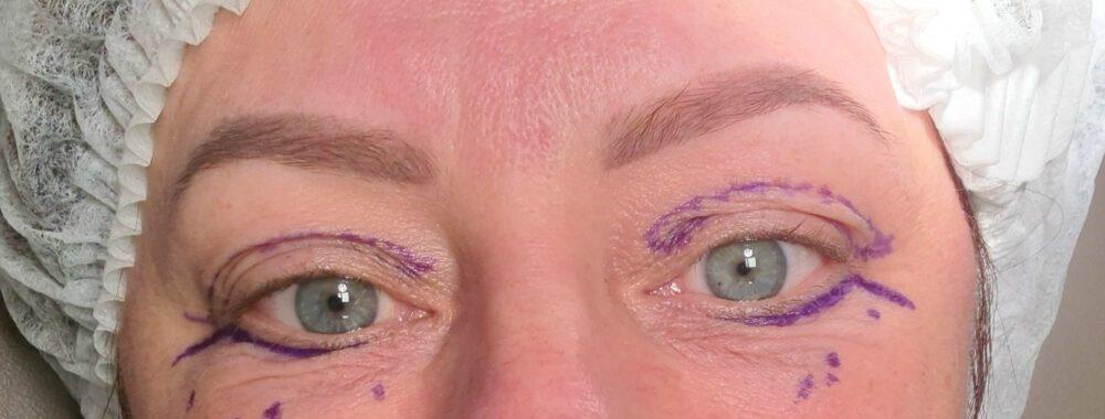 Drs. Adamo, Ivy Clinics, ooglid, correctie, boven, onder, PlexR, vrouw, ingreep, foto's, alle dagen, per dag, ingreep, vertellen, ervaring