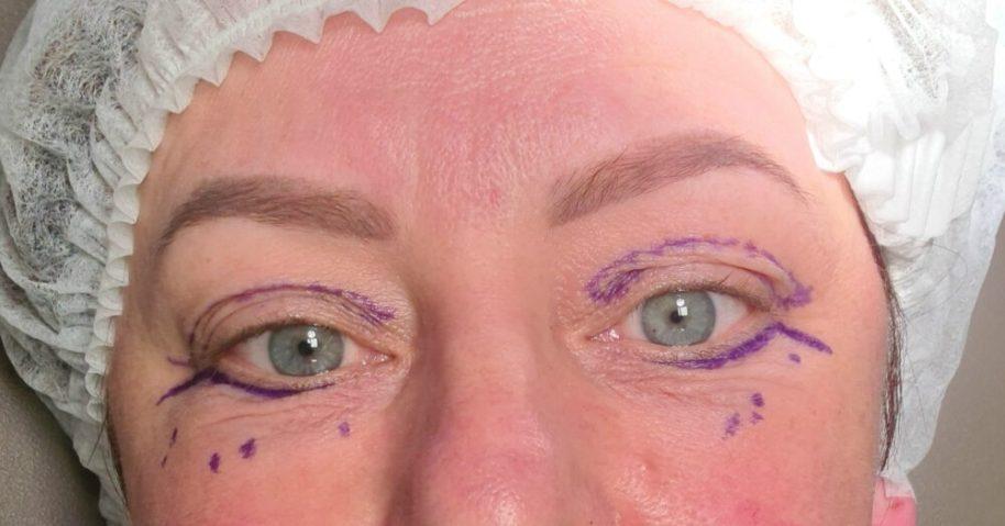 Drs. Adamo, Ivy Clinics, ooglidcorrectie, boven, onder, PlexR, vrouw, ingreep, foto's, alle dagen, per dag, ingreep, vertellen, ervaring