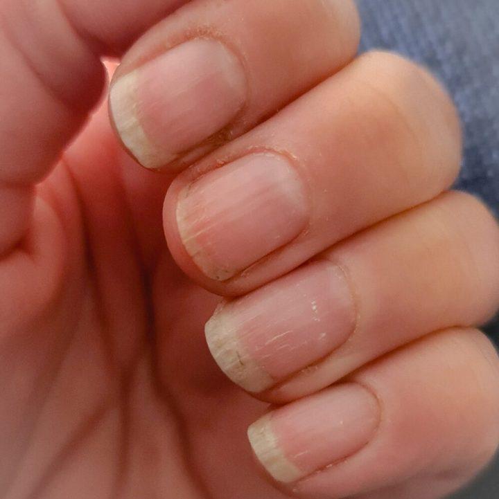 trind, nail, repair, gezonde nagels, review, lange, natuurlijke, beauty, yustsome