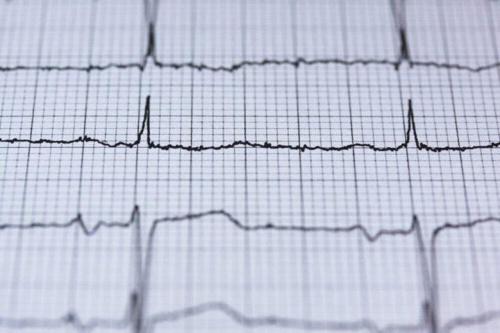 AED, hart, hartinfarct, redden, buurt, zoeken, waar, vinden, levens redden, huren, kopen