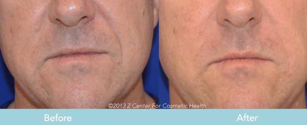 Juvederm for Nasolabial Folds