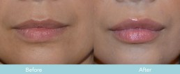Juvederm for Lips