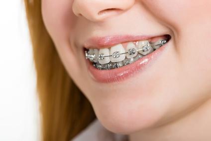 Nach der Bracket-Entfernung beobachtet man häufig weißlich opake Flecken auf den Zahnglattflächen. © draw05 / Fotolia.com
