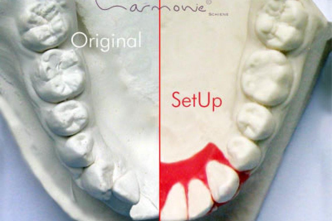 Die unsichtbare Zahnspange von Orthos © Orthos Fachlabor für Kieferorthopädie - www.orthos.de