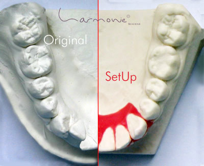 Die unsichtbare Zahnspange zur sanften Korrektur von Zahnfehlstellungen. © Orthos Fachlabor für Kieferorthopädie - www.orthos.de
