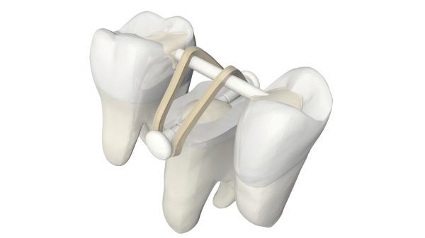 Das Extrusionskonzept zum Erhalt verloren geglaubter Zähne © Komet