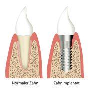 Zahnimplantate in der Türkei