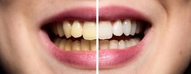 Zahnaufhellung in der Türkei