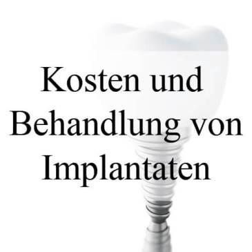 Implantat – Kosten und Ablauf der Behandlung
