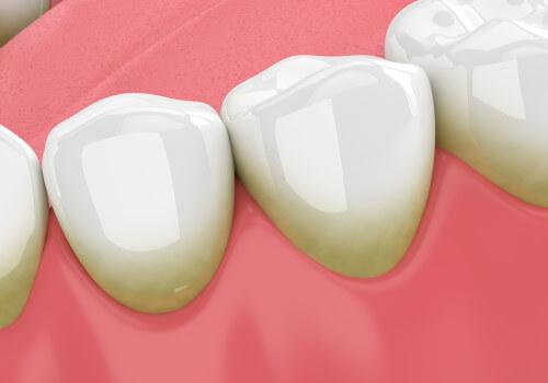 Zahnstein – Entstehung, Vorbeugung und Kosten der Entfernung