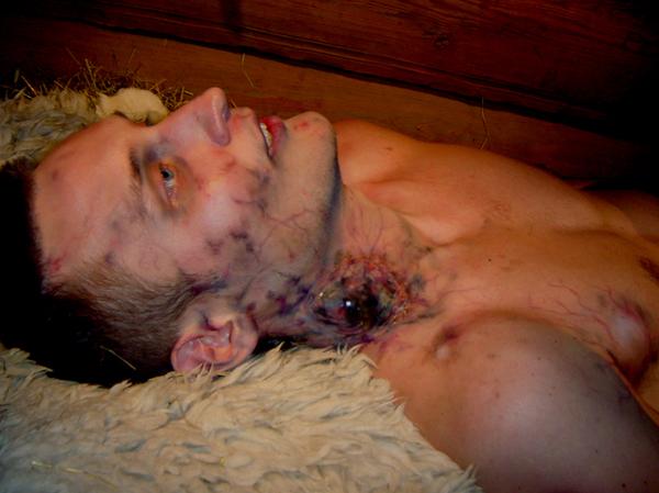 Allarme epidemia di peste bubbonica negli Stati Uniti