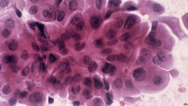 Test del sangue capace di predire la ricaduta del tumore al seno