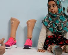 الطفلة السورية مايا مرعي التي كانت تستعمل علب التونة كأقدام ستستطيع المشي بعد تركيب أطراف صناعية لها