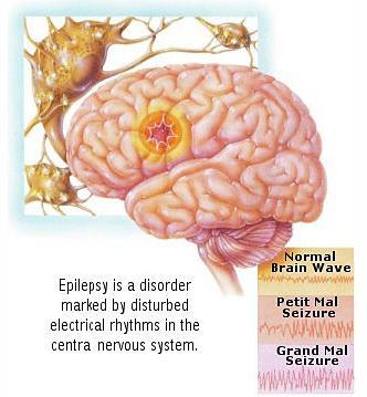 The epileptic brain