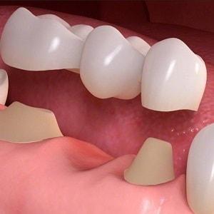 правильное использование зубной нити