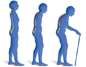 https://i2.wp.com/www.zeitenschrift.com/uploads/resized/extract/large/65_magnesiumchlorid-arthrose_und_osteoporose_sind_heilbar1.jpeg