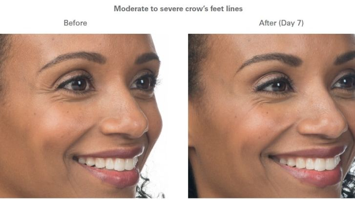 Botox Treatments Minneapolis *Results may vary per patient.