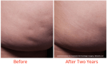 cellulite treatment minneapolis