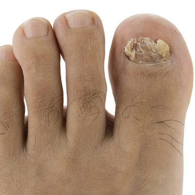 nail fungus treatment minneapolis