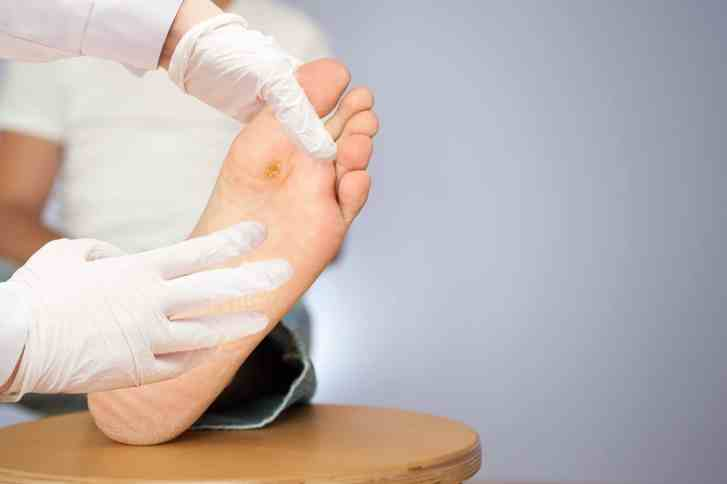 wart treatments minneapolis