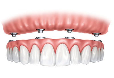 Zen Dental - Denture Procedure