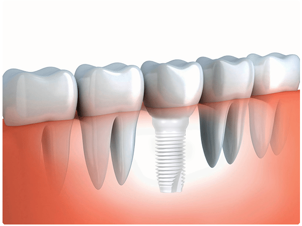 Single-tooth-implant-cosmetic-dentistry