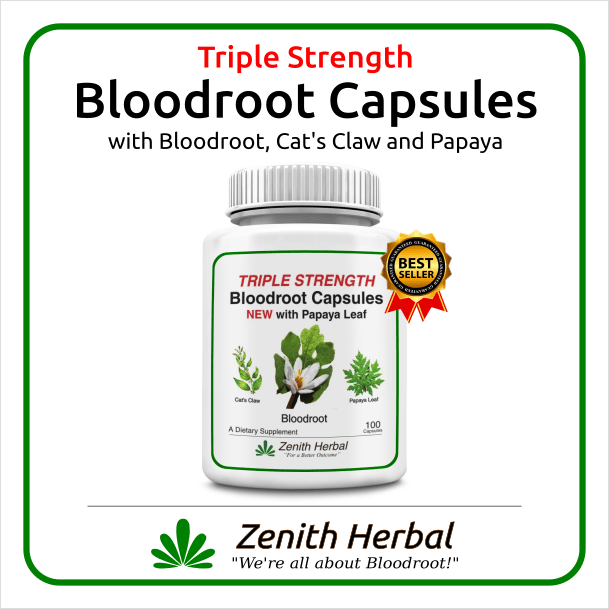 Bloodroot Capsules (Triple Strength) with Cat's Claw and PAPAYA! – 300mg