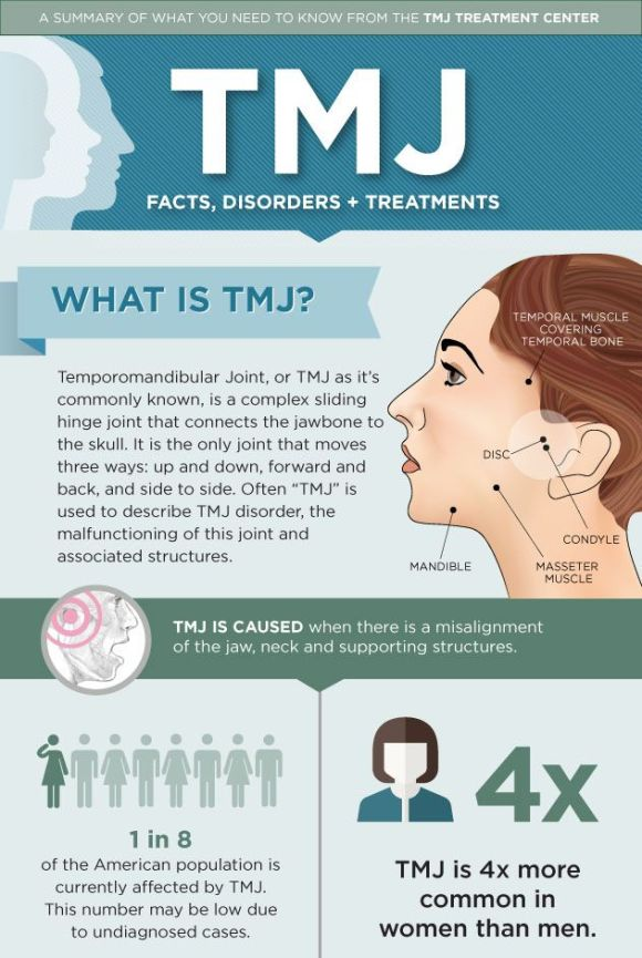 TMJ treatment, author by Coy Rosenthal