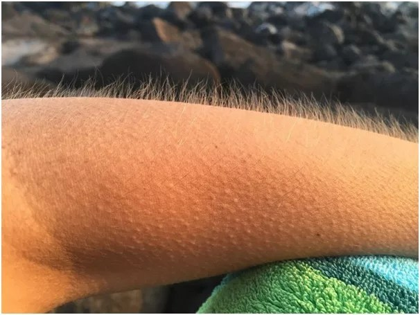 Arrector pili muscles responsible for Goosebumps