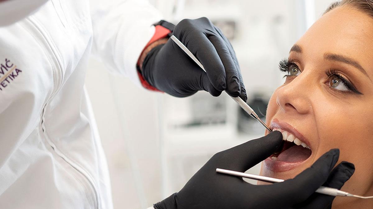 pregled zuba - stomatolog dr. goran jovičević - 2020