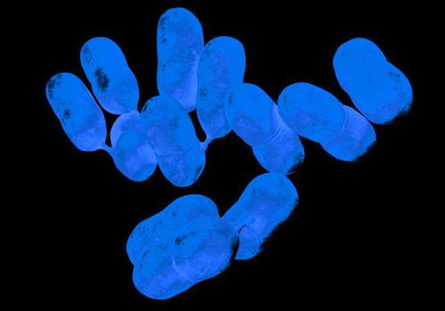 李斯特菌感染有哪些癥狀_致病菌