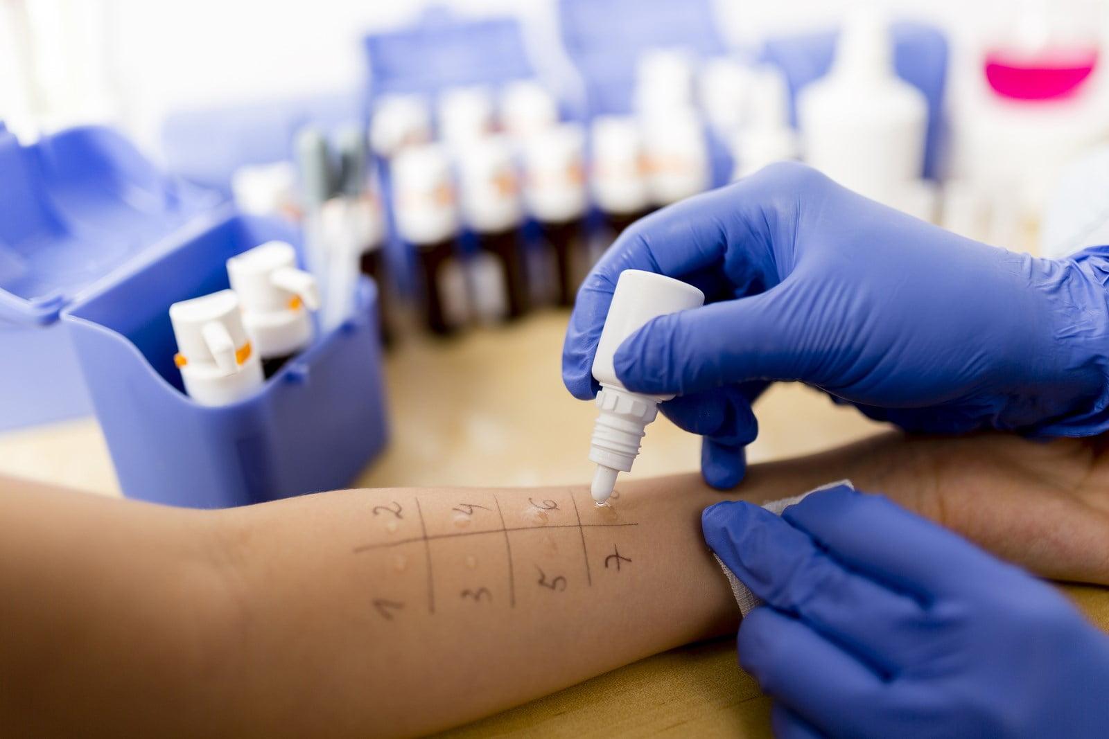 Testele alergologice cutanate: prick și patch